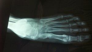 תצלום רנטגן של כף רגל